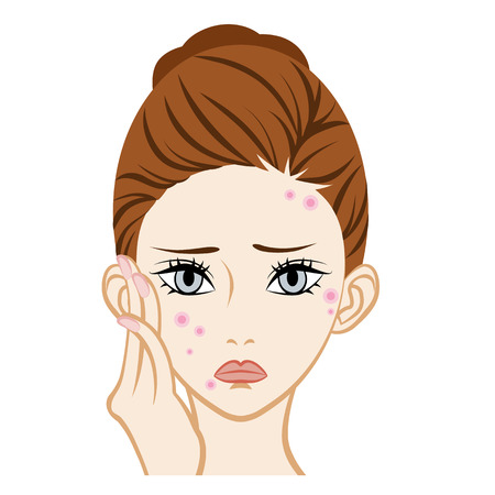 rash: Acne-Facial Skin Trouble