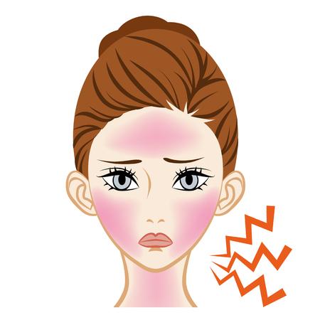 Sunburn Dermatitis  -Skincare Trouble