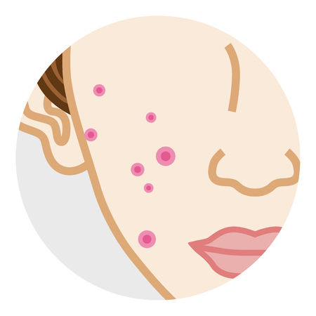 Acne - Cheek Body Part