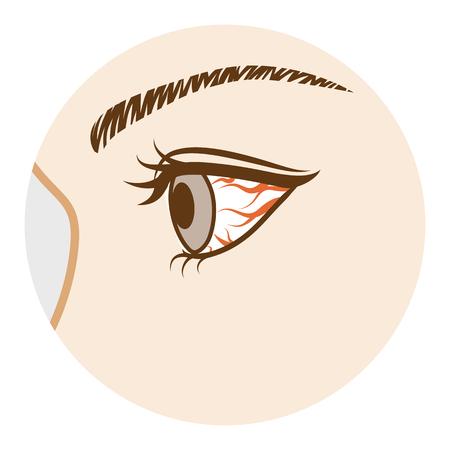 結膜炎の眼疾患、側ビュー  イラスト・ベクター素材