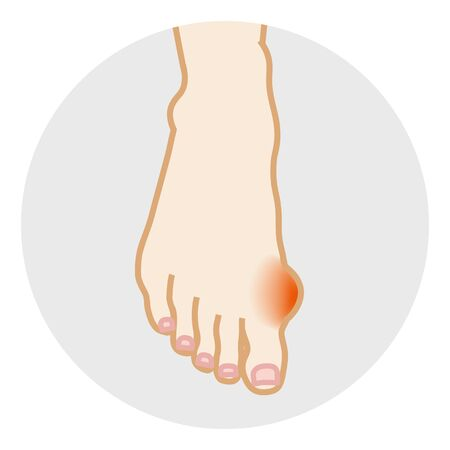 Hallux valgus - Foot Body Part