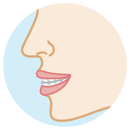 Orthodontic appliance -Face close-up, Side view Illustration