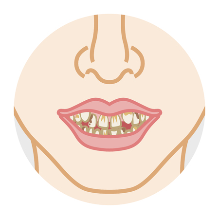 Bad dentition and dirty teeth Illustration
