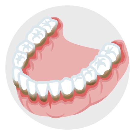 下顎の歯周疾患歯  イラスト・ベクター素材