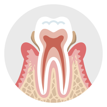 periodontal: Middle stage Periodontal disease - Tooth cross section Illustration