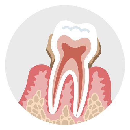 重い段階歯周病 - 歯の断面図  イラスト・ベクター素材