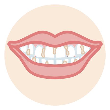 Dentition - Plaque