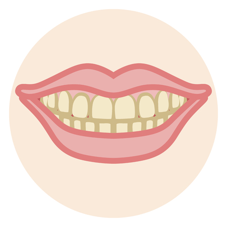 stain: Dentition - Stain Illustration