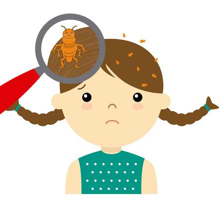 piojos: chica con piojos de la cabeza