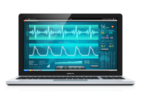 heart monitor: laptop or notebook computer PC with medical cardiologic diagnostic test software on screen isolated on white background