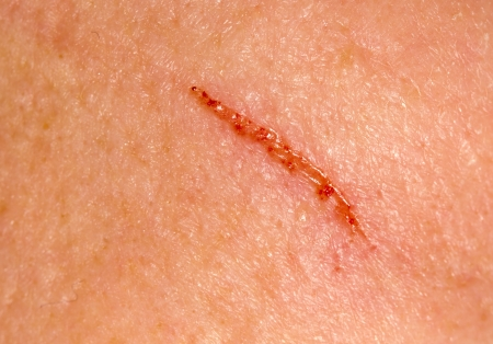 herida: herida en la piel. macro Foto de archivo