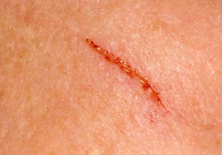 wound on the skin. macro photo