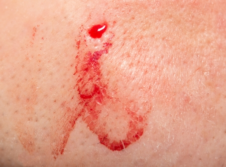 wound care: blood on the skin. macro Stock Photo