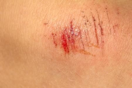 皮膚上の傷します。マクロ