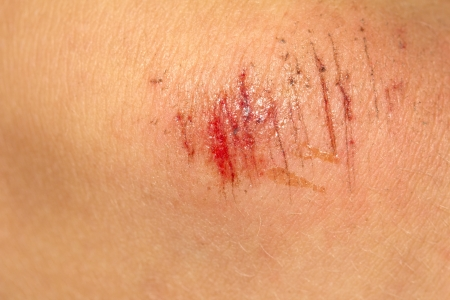 scab: wound on the skin. macro