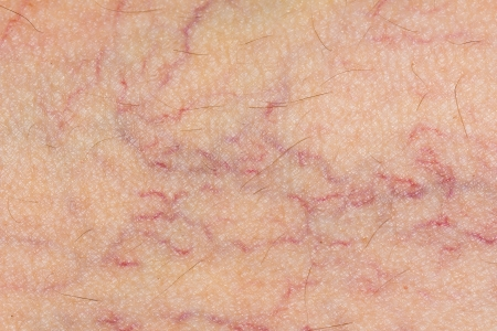 varicose: varicose veins on the skin. Macro Stock Photo