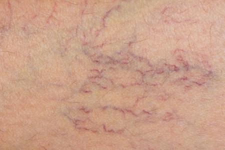 皮膚に下肢静脈瘤。マクロ