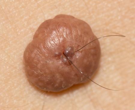 a mole on the skin. macro