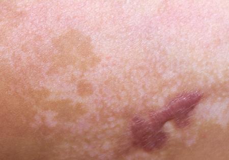 litteken van een brandwond op de huid Stockfoto