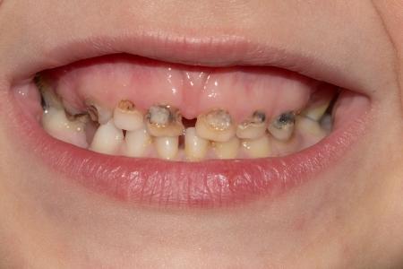 Dental geneeskunde en de gezondheidszorg - menselijke patiënt open mond met tanden cariës verval Stockfoto