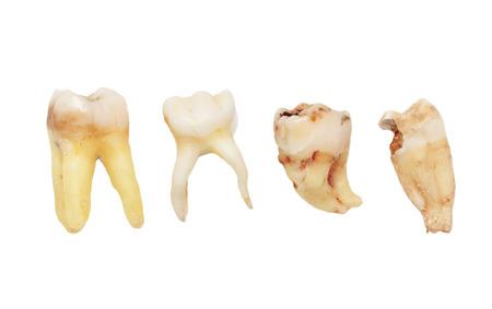 teeth on a white background. macro Standard-Bild