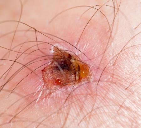 scab: sore on the skin. macro