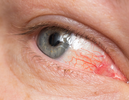 bloodshot: Chronic conjunctivitis eye with a red iris and pus close-up.