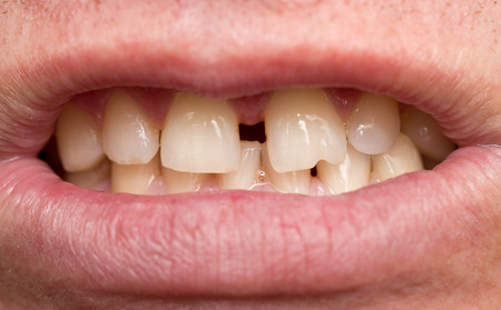 crooked: men crooked teeth. macro