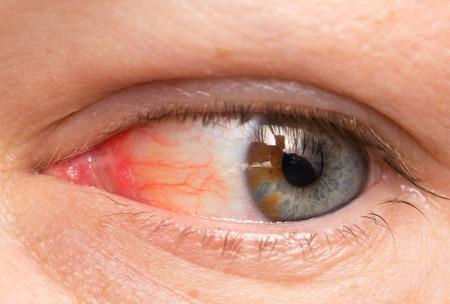 Хронический конъюнктивит глаз с красным радужки и гноя крупным планом.