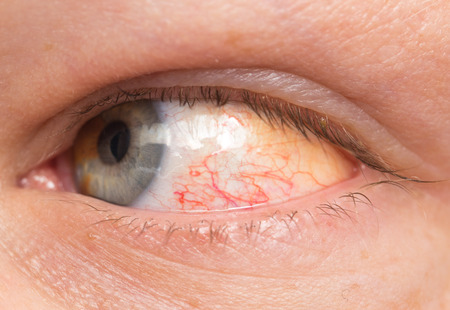 Chronic conjunctivitis eye with a red iris and pus close-up. photo