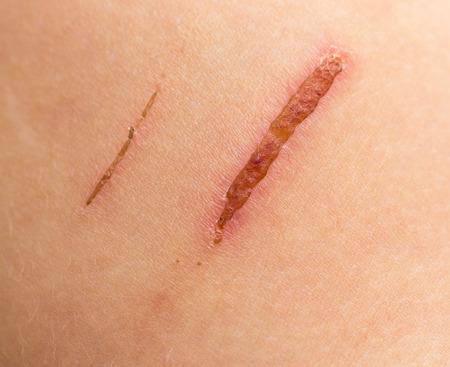 sore on the skin Standard-Bild