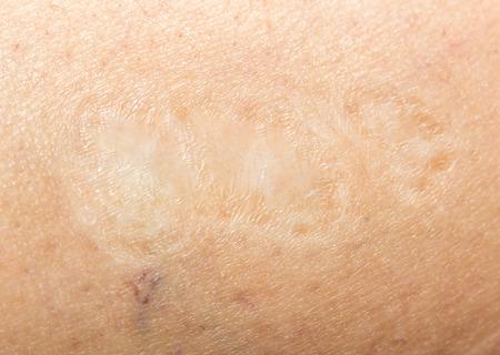 harming: scar on the human skin