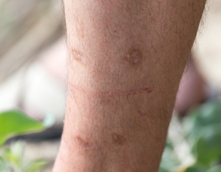 scars on his leg photo