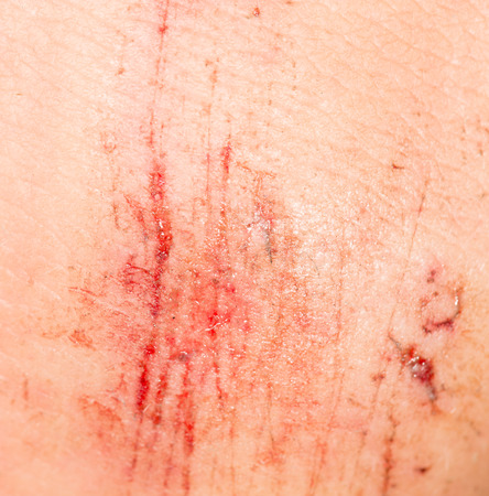 wound on the skin. close-up