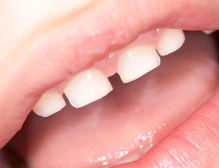 femme bouche ouverte: dents dans la bouche. fermer