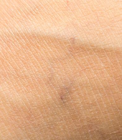 fondo de la piel humana