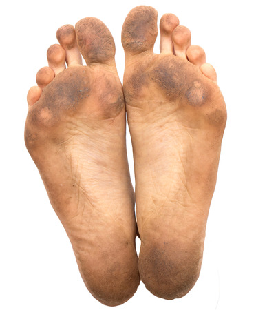 dirty feet: dirty foot on a white background Stock Photo