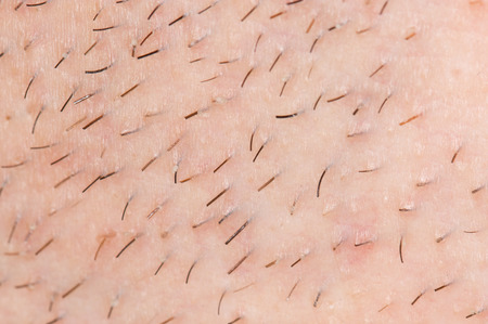 smoothfaced: bristles on the skin. close-up Stock Photo