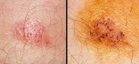 toenail fungus: Ringworm of the skin. macro