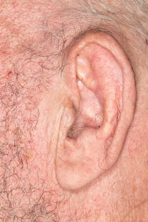 losing brain function: The old mans ear