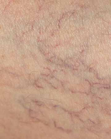 veins: veins on the skin. close Stock Photo