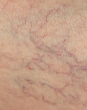 veins on the skin. close Standard-Bild