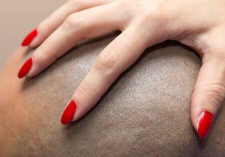 bald head: Female hand on the mans bald head