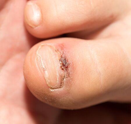 pus: gamba ferita dito