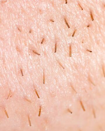 smoothfaced: the bristles on the skin. macro