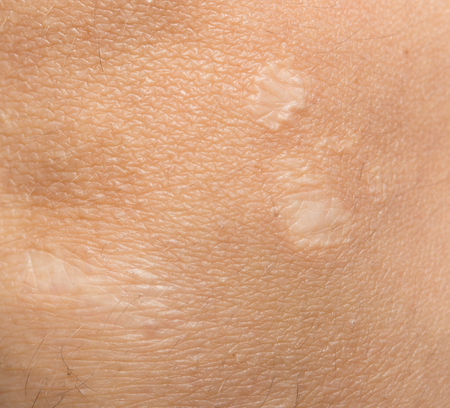 scar: scar on the human skin