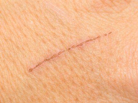 wound on the skin. macro