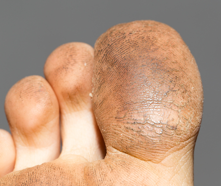 unhygienic: dirty toes