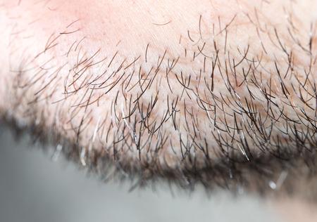 hair stubble on men. macro