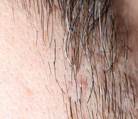 straggly: hair stubble on men. macro